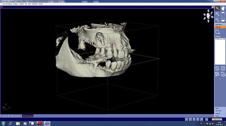 Tomografia3D