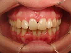 ortodoncia_2